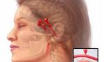 Mengenal Aneurisma Otak