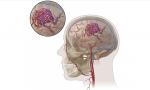 Arteriovenous Malformation (AVM): Kelainan Pembuluh Darah di Otak